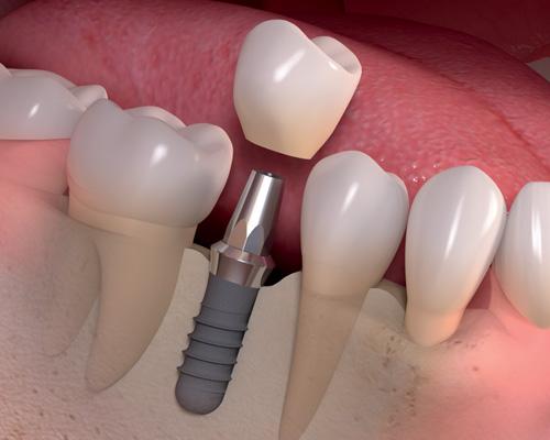 Single-Dental-Implant